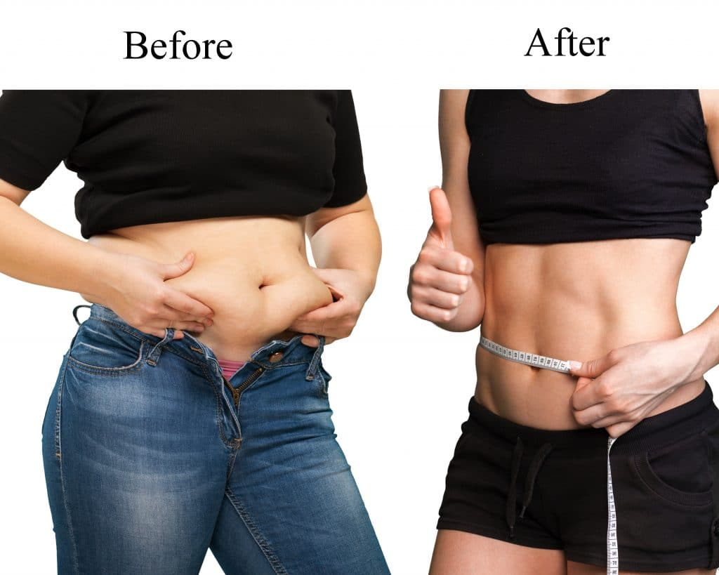 before after weight loss woman